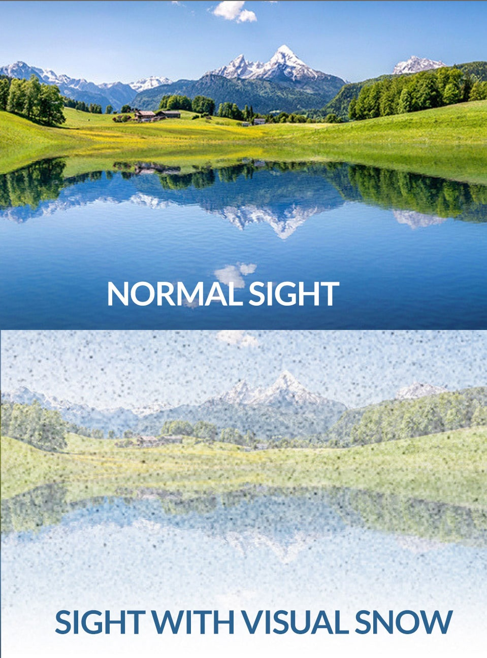 Visual-Snow-sight-comparison